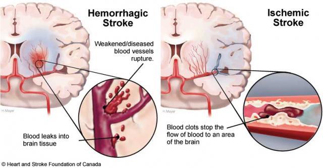 Những di chứng của bệnh tai biến mạch máu não