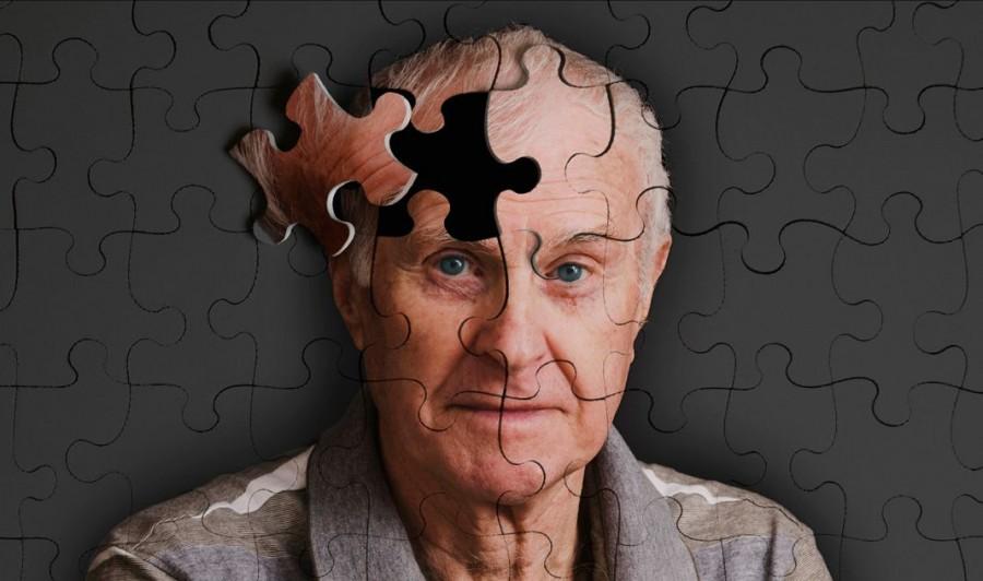 Các phương pháp phục hồi trí nhớ sau tai biến