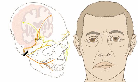 Nguyên nhân và cách điều trị liệt dây thần kinh số 7