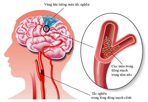 Triệu chứng và cách phòng ngừa tai biến mạch máu não.