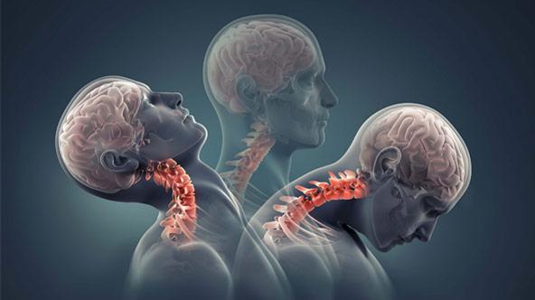 Biểu hiện và cách điều trị thoái hóa cột sống cổ