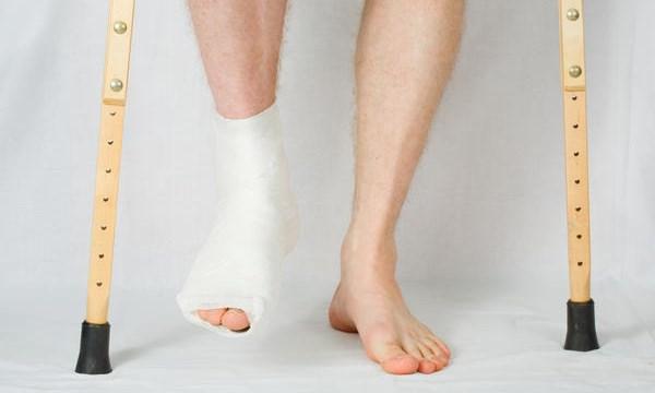Vật lý trị liệu cho bệnh nhân sau gãy chân