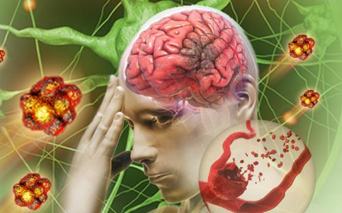 Bệnh tai biến mạch máu não nhẹ