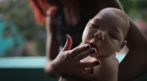 thai phụ bị nhiễm virus zika có con bị bệnh đầu nhỏ