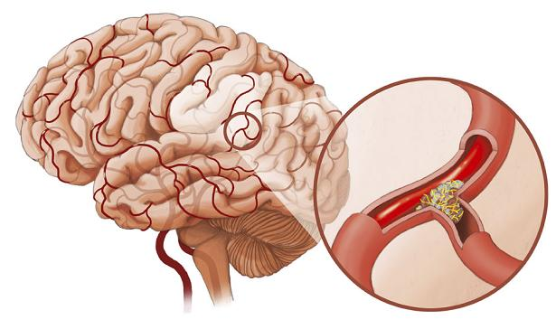 Tai biến mạch máu não là căn bệnh nguy hiểm và để lại di chứng nặng nề