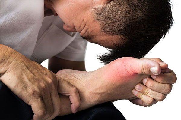 Cơn Gout cấp tính