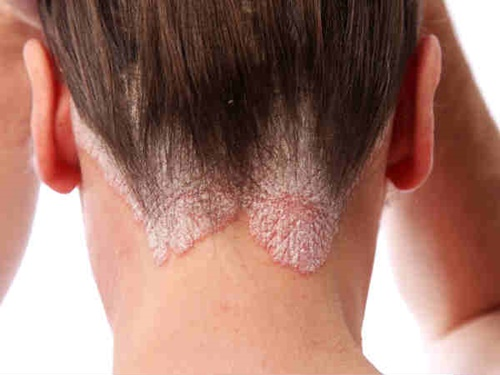 Ngủ khi tóc còn ướt sẽ gây ra nấm da đầu