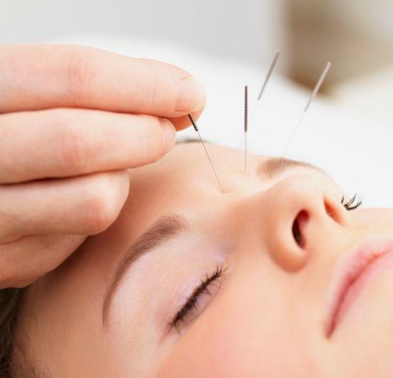 Điều trị liệt dây thần kinh số 7 bằng phương pháp châm cứu